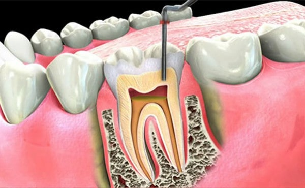 Things To Know About Root Canal Treatment